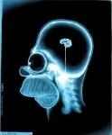 Radiografía Homero - JPEG, 124x150 pixels, 6 KB